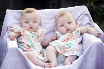 Близнаци спасени со ласерска операција уште во матката