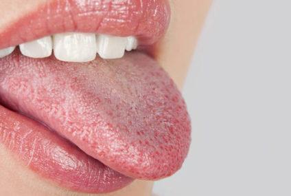 Состојби кои предизвикуваат метален вкус во устата